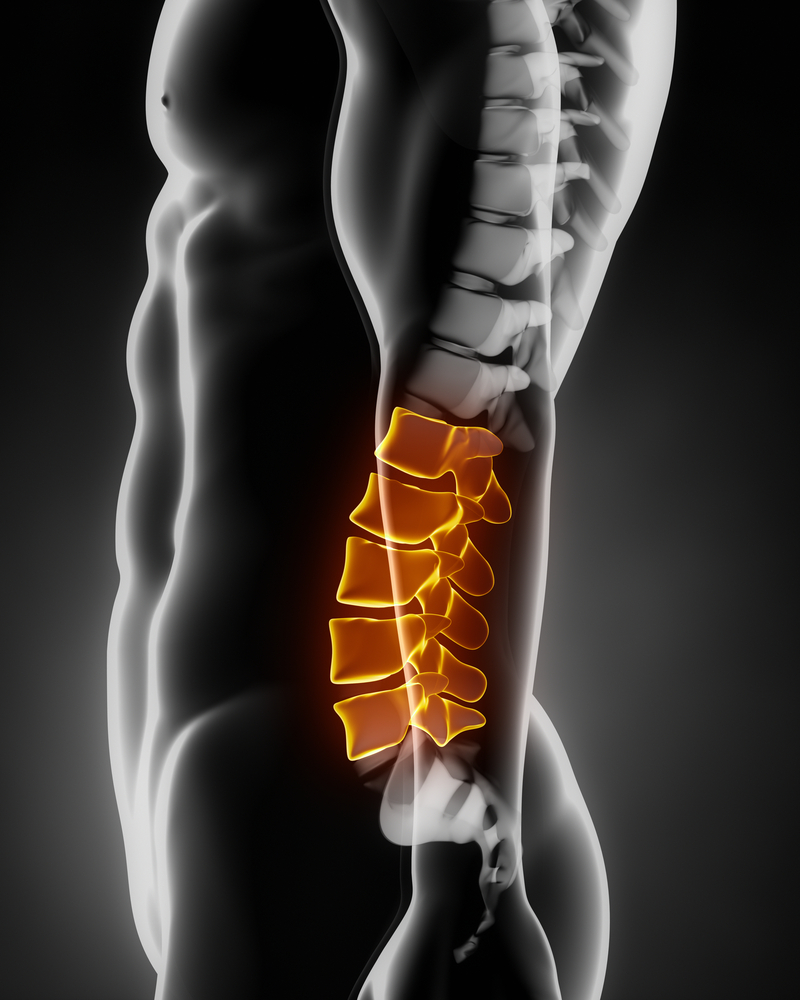 back pain after epidural steroid injection